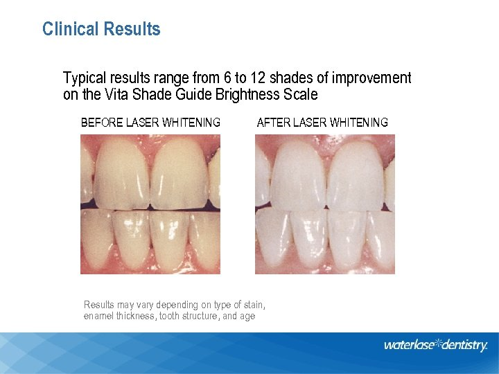 Clinical Results Typical results range from 6 to 12 shades of improvement on the