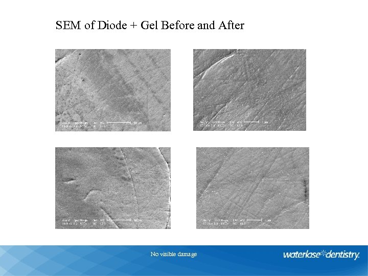 Diode Laser + Gel SEM of Diode + Gel Before and After 1, 5