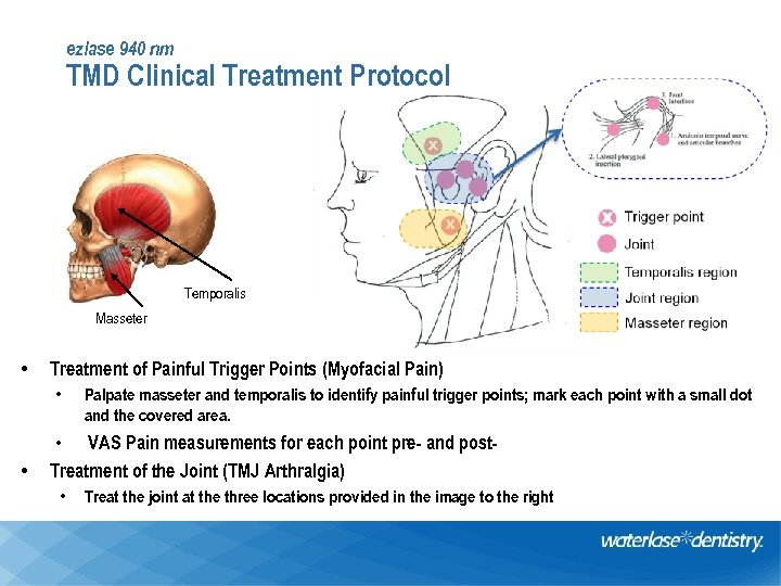 ezlase 940 nm TMD Clinical Treatment Protocol Temporalis Masseter • Treatment of Painful Trigger