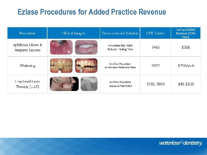 Ezlase Procedures for Added Practice Revenue