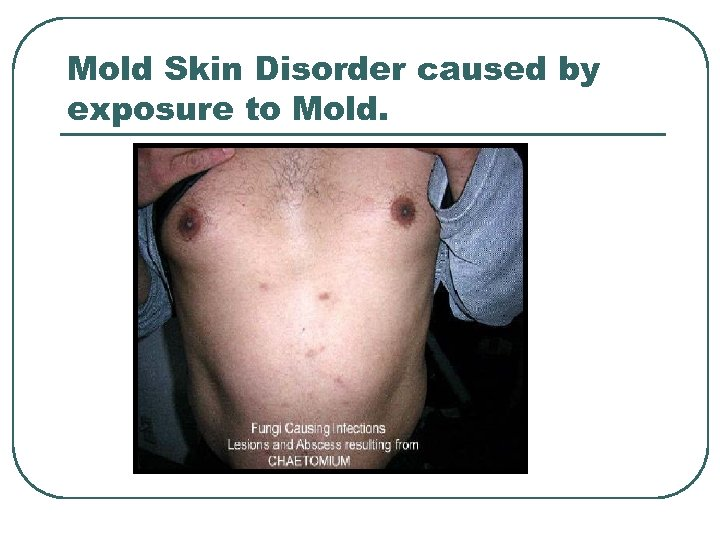 Mold Skin Disorder caused by exposure to Mold.