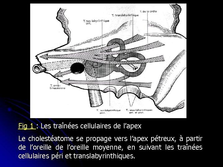Fig 1 : Les traînées cellulaires de l'apex Le cholestéatome se propage vers l'apex