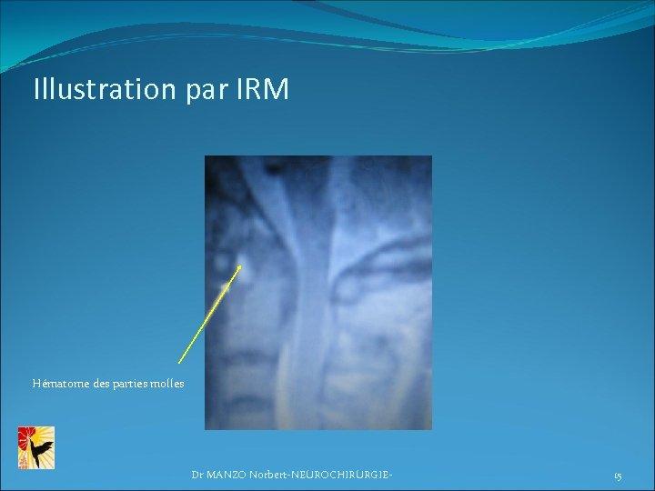 Illustration par IRM Hématome des parties molles Dr MANZO Norbert-NEUROCHIRURGIE- 15