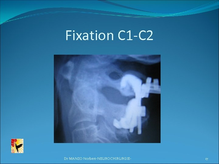 Fixation C 1 -C 2 Dr MANZO Norbert-NEUROCHIRURGIE- 17