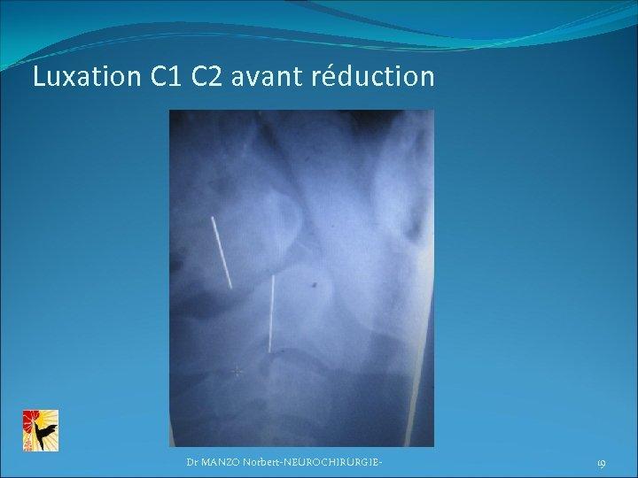 Luxation C 1 C 2 avant réduction Dr MANZO Norbert-NEUROCHIRURGIE- 19