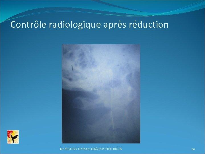 Contrôle radiologique après réduction Dr MANZO Norbert-NEUROCHIRURGIE- 20