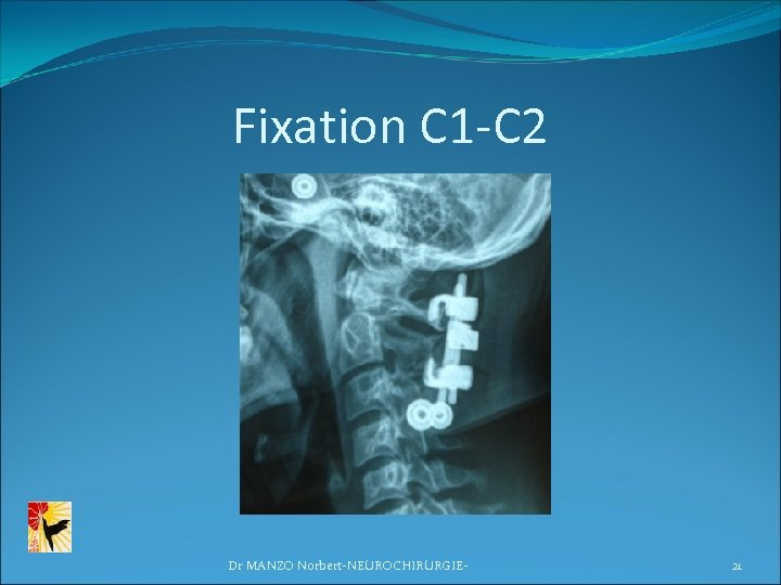 Fixation C 1 -C 2 Dr MANZO Norbert-NEUROCHIRURGIE- 21