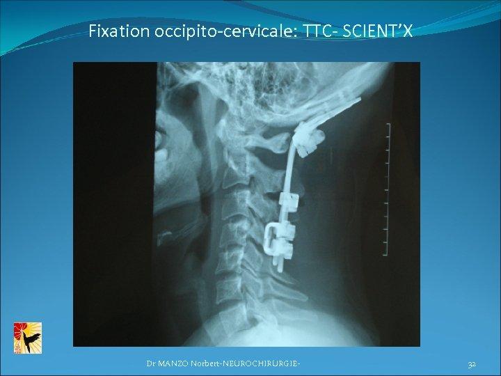 Fixation occipito-cervicale: TTC- SCIENT'X Dr MANZO Norbert-NEUROCHIRURGIE- 32