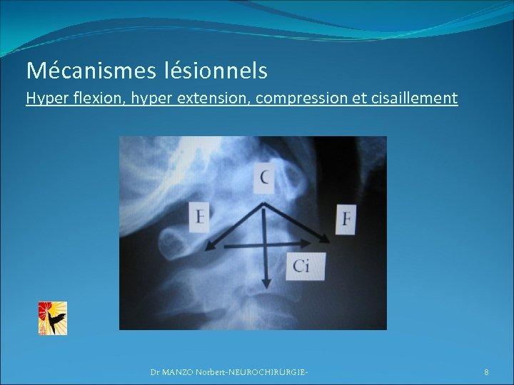 Mécanismes lésionnels Hyper flexion, hyper extension, compression et cisaillement Dr MANZO Norbert-NEUROCHIRURGIE- 8
