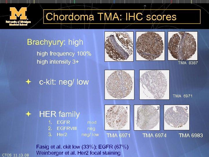 Chordoma TMA: IHC scores Brachyury: high frequency 100% high intensity 3+ TMA 8387 c-kit:
