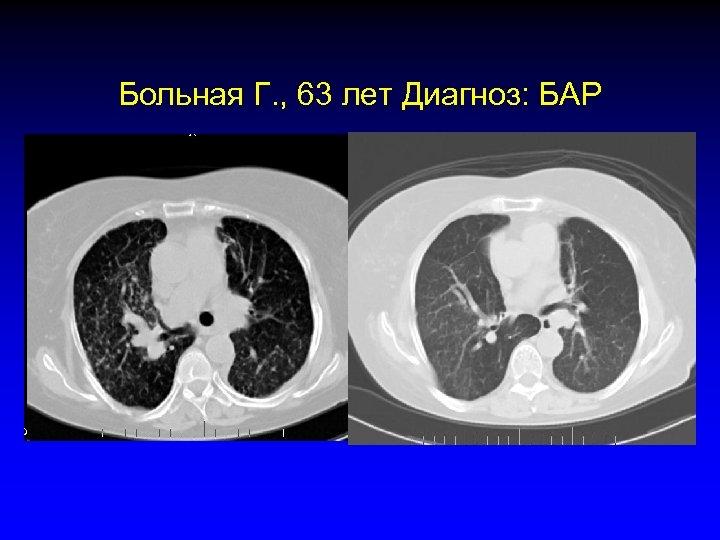 Больная Г. , 63 лет Диагноз: БАР