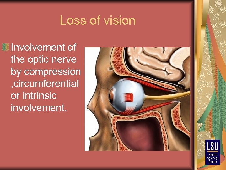 Loss of vision Involvement of the optic nerve by compression , circumferential or intrinsic