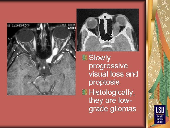 Slowly progressive visual loss and proptosis Histologically, they are lowgrade gliomas