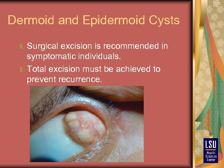 Dermoid and Epidermoid Cysts Surgical excision is recommended in symptomatic individuals. Total excision must