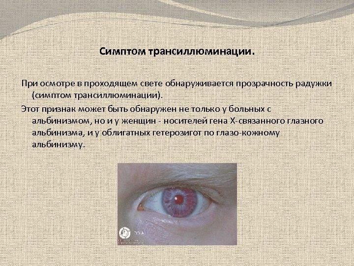 Симптом трансиллюминации. При осмотре в проходящем свете обнаруживается прозрачность радужки (симптом трансиллюминации). Этот признак