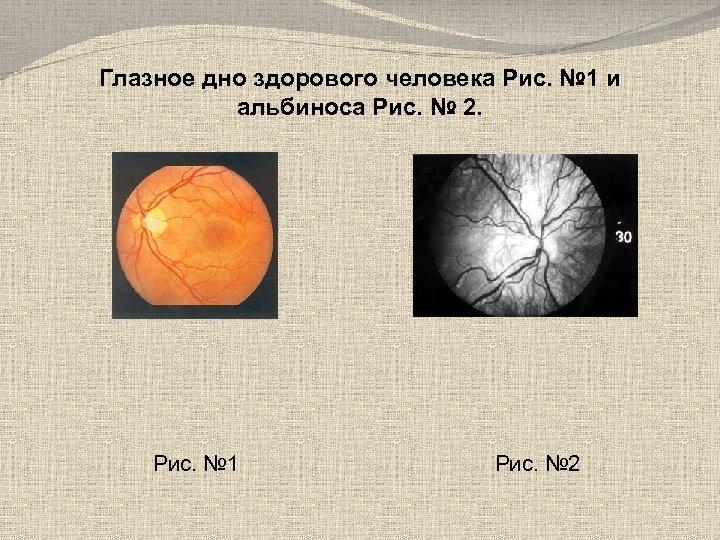 Глазное дно здорового человека Рис. № 1 и альбиноса Рис. № 2. Рис. №