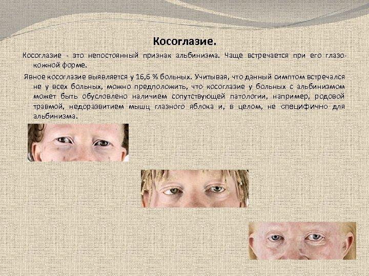 Косоглазие - это непостоянный признак альбинизма. Чаще встречается при его глазокожной форме. Явное косоглазие