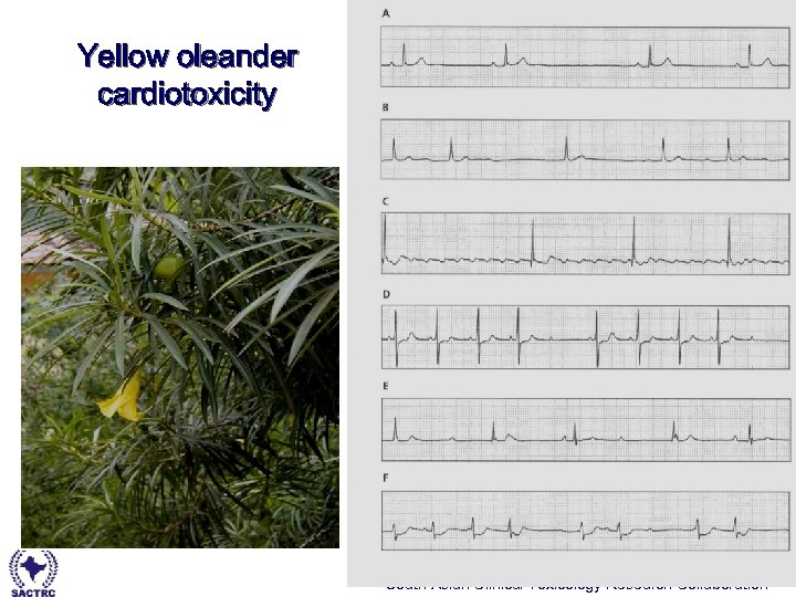 Yellow oleander cardiotoxicity South Asian Clinical Toxicology Research Collaboration
