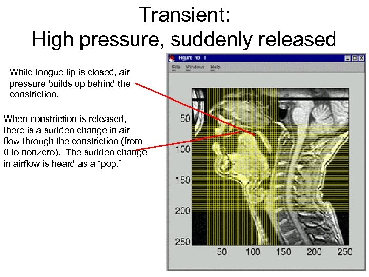 Transient: High pressure, suddenly released While tongue tip is closed, air pressure builds up