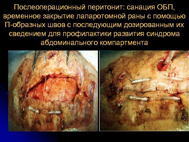 Послеоперационный перитонит: санация ОБП, временное закрытие лапаротомной раны с помощью П образных швов с
