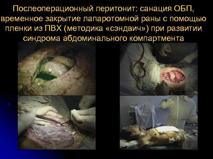 Послеоперационный перитонит: санация ОБП, временное закрытие лапаротомной раны с помощью пленки из ПВХ (методика