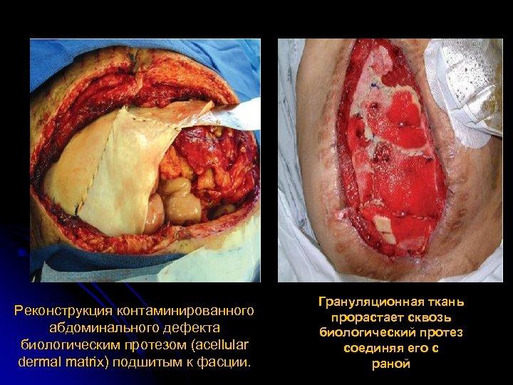 Реконструкция контаминированного абдоминального дефекта биологическим протезом (acellular dermal matrix) подшитым к фасции. Грануляционная ткань
