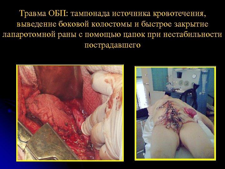 Травма ОБП: тампонада источника кровотечения, выведение боковой колостомы и быстрое закрытие лапаротомной раны с