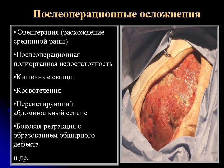 Послеоперационные осложнения • Эвентерация (расхождение срединной раны) • Послеоперационная полиорганная недостаточность • Кишечные свищи