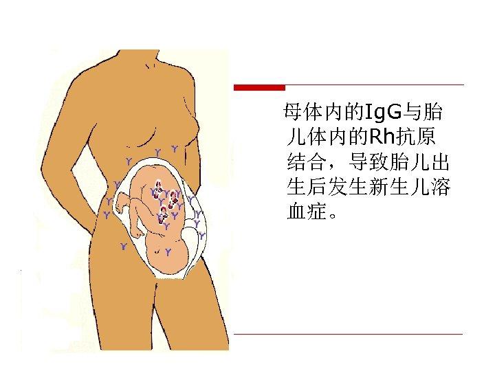 母体内的Ig. G与胎 儿体内的Rh抗原 结合,导致胎儿出 生后发生新生儿溶 血症。