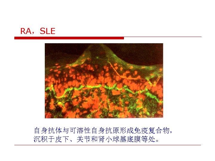 RA,SLE 自身抗体与可溶性自身抗原形成免疫复合物, 沉积于皮下、关节和肾小球基底膜等处。
