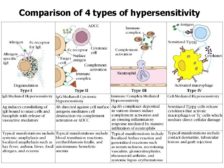 Comparison of 4 types of hypersensitivity