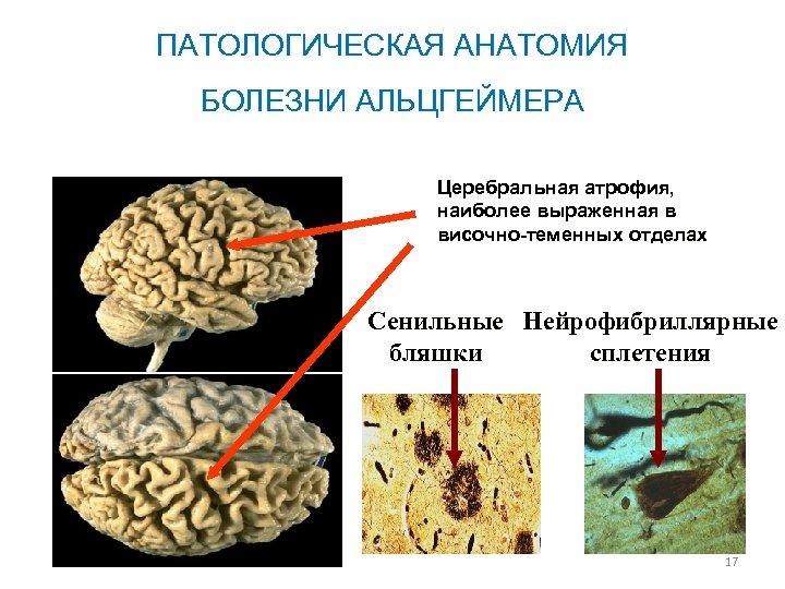 ПАТОЛОГИЧЕСКАЯ АНАТОМИЯ БОЛЕЗНИ АЛЬЦГЕЙМЕРА Церебральная атрофия, наиболее выраженная в височно-теменных отделах Сенильные Нейрофибриллярные бляшки