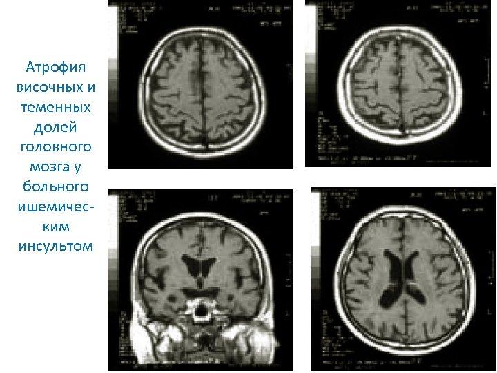 Атрофия височных и теменных долей головного мозга у больного ишемическим инсультом