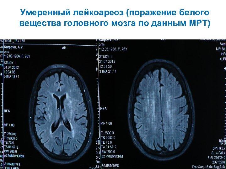 Умеренный лейкоареоз (поражение белого вещества головного мозга по данным МРТ)