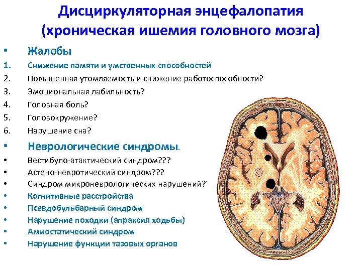Дисциркуляторная энцефалопатия (хроническая ишемия головного мозга) • Жалобы 1. 2. 3. 4. 5. 6.