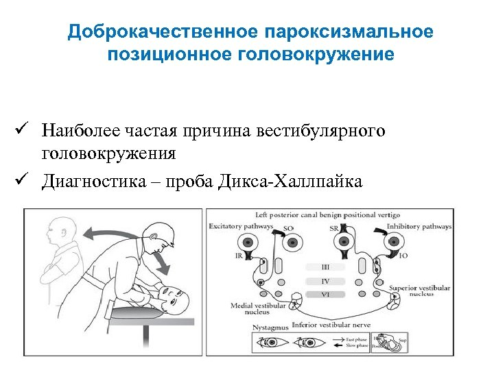 Доброкачественное пароксизмальное позиционное головокружение ü Наиболее частая причина вестибулярного головокружения ü Диагностика – проба