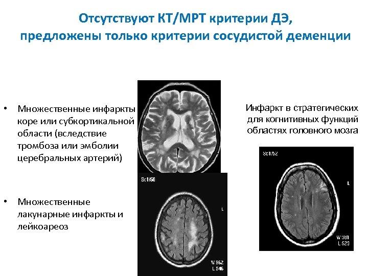 Отсутствуют КТ/МРТ критерии ДЭ, предложены только критерии сосудистой деменции • Множественные инфаркты в коре