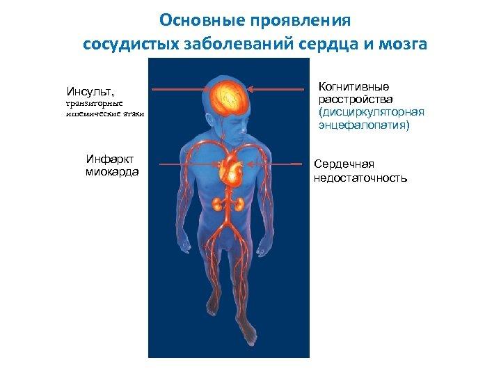 Основные проявления сосудистых заболеваний сердца и мозга Инсульт, транзиторные ишемические атаки Инфаркт миокарда Когнитивные