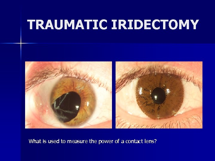 TRAUMATIC IRIDECTOMY What is used to measure the power of a contact lens?