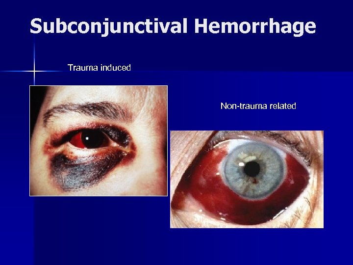 Subconjunctival Hemorrhage Trauma induced Non-trauma related