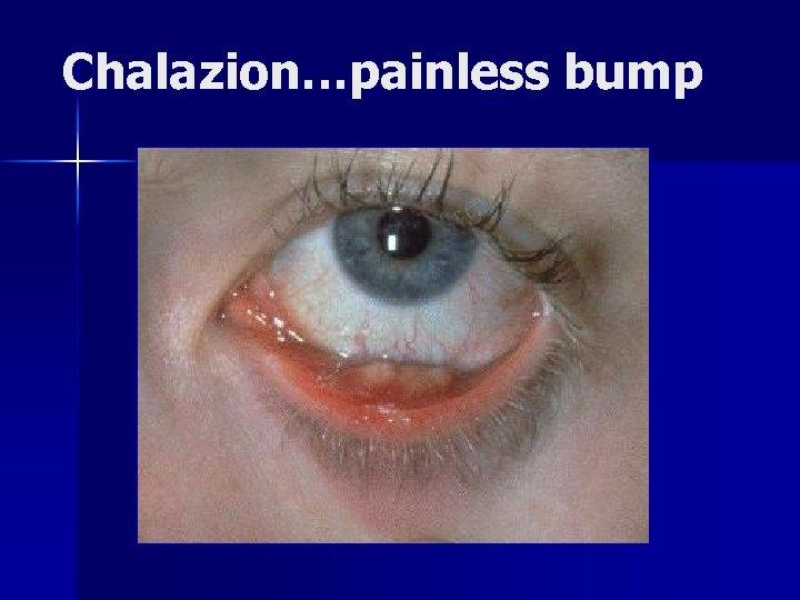 Chalazion…painless bump