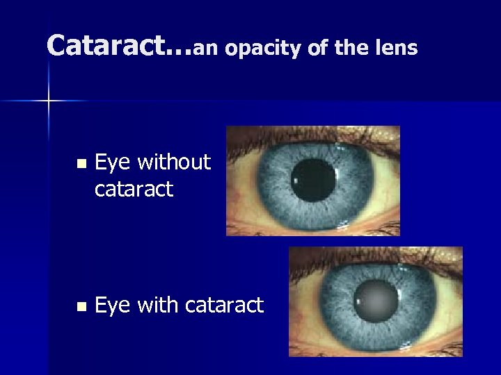 Cataract…an opacity of the lens n Eye without cataract n Eye with cataract