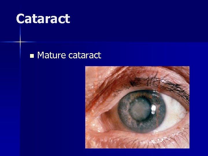 Cataract n Mature cataract
