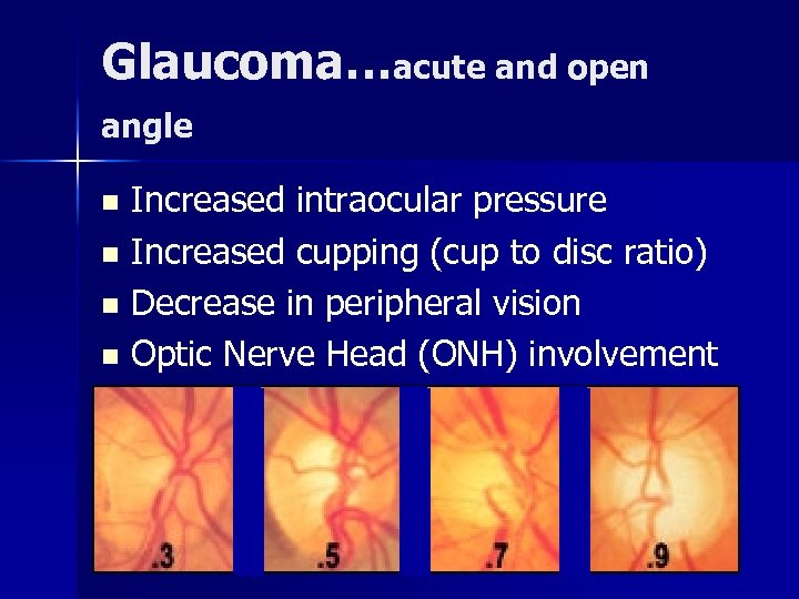 Glaucoma…acute and open angle Increased intraocular pressure n Increased cupping (cup to disc ratio)