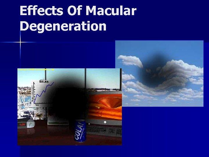 Effects Of Macular Degeneration