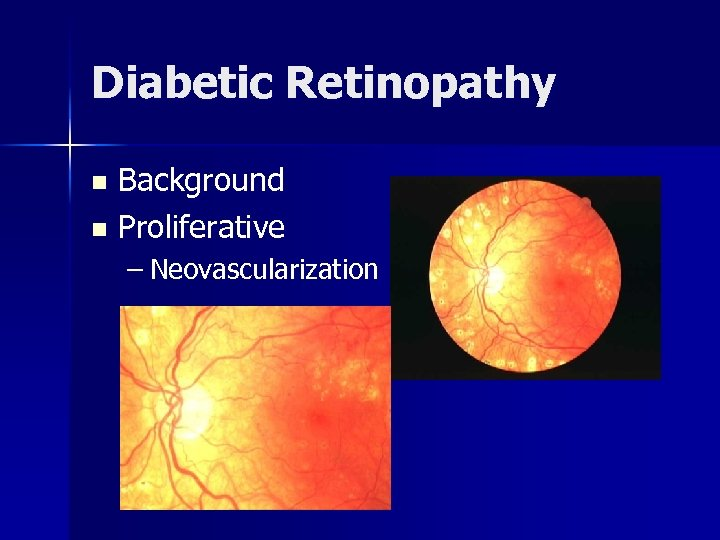 Diabetic Retinopathy Background n Proliferative n – Neovascularization