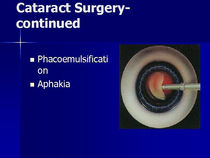 Cataract Surgerycontinued Phacoemulsificati on n Aphakia n