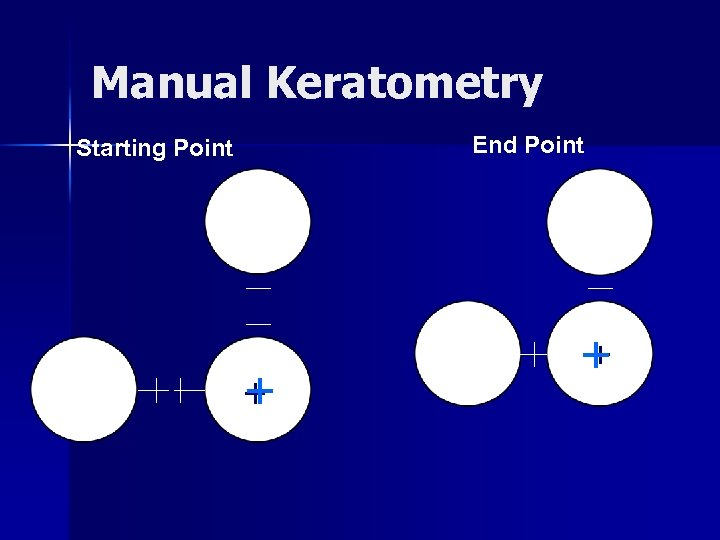 Manual Keratometry End Point Starting Point + +