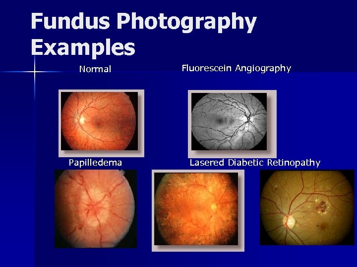 Fundus Photography Examples Normal Papilledema Fluorescein Angiography Lasered Diabetic Retinopathy