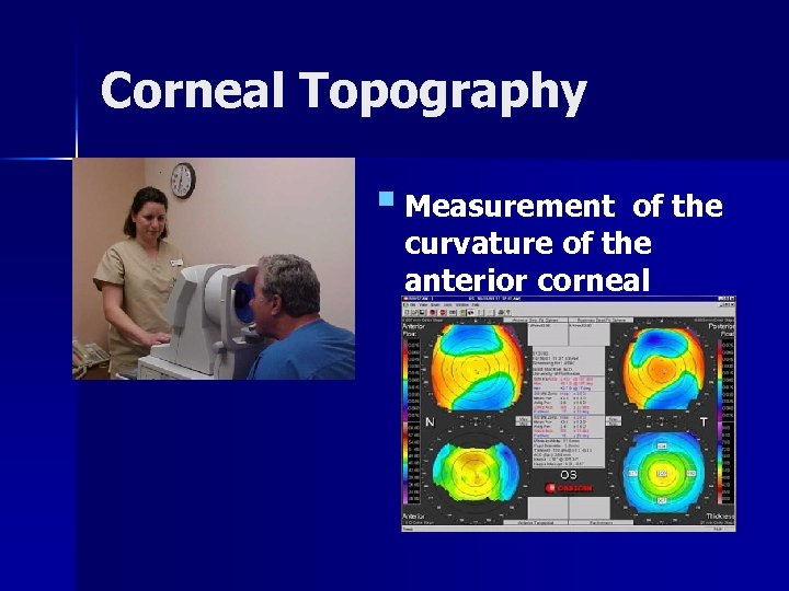 Corneal Topography § Measurement of the curvature of the anterior corneal surface.